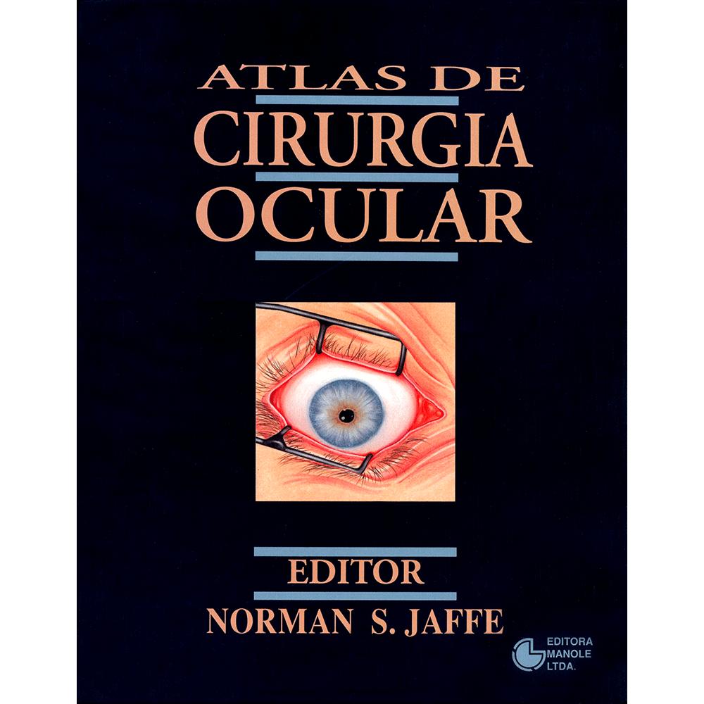Atlas-de-Cirurgia-Ocular