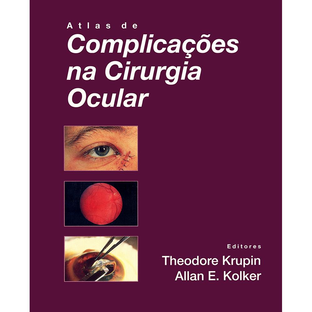 Atlas-de-Complicacoes-na-Cirurgia-Ocular