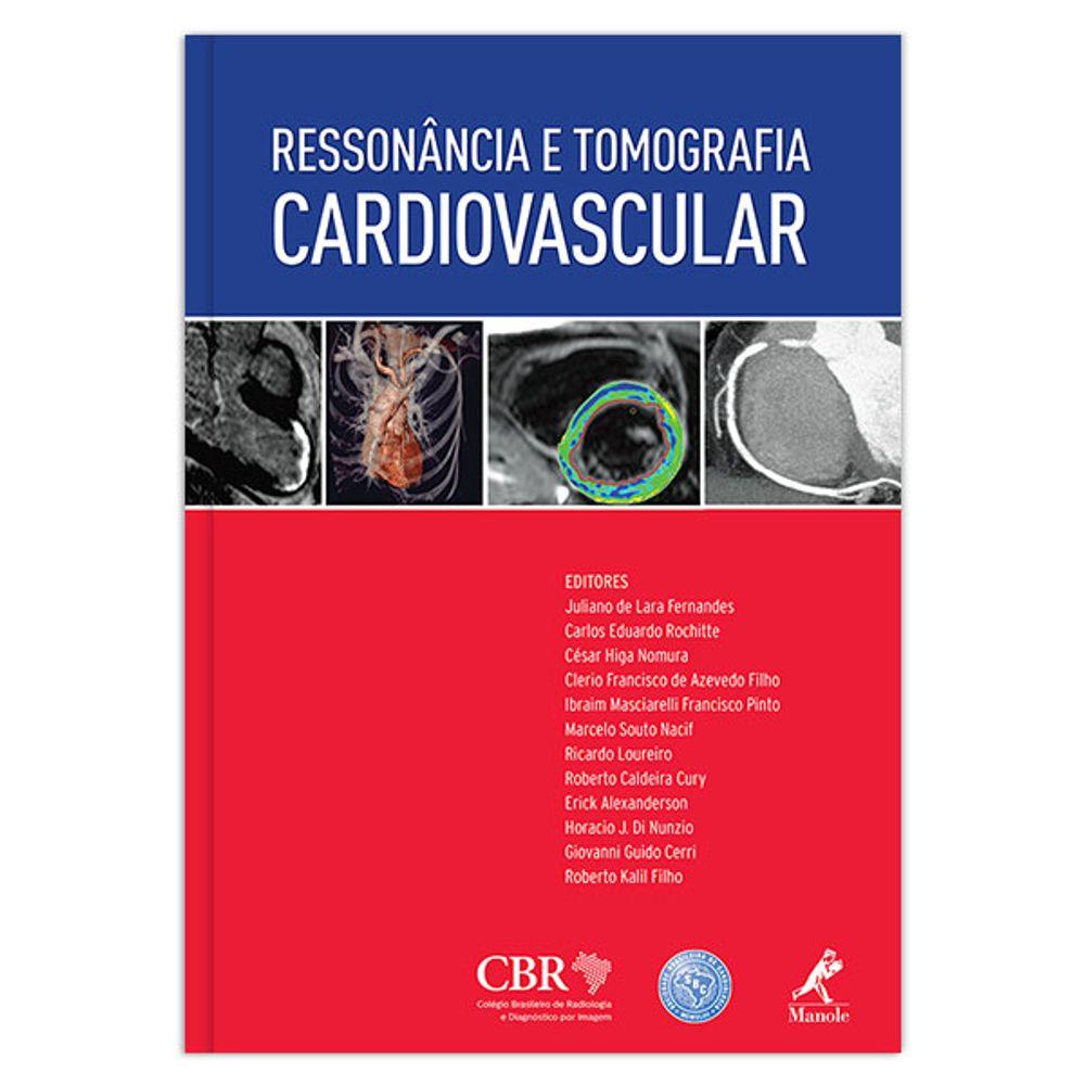 ressonancia-e-tomografia-cardiovascular-1-edicao