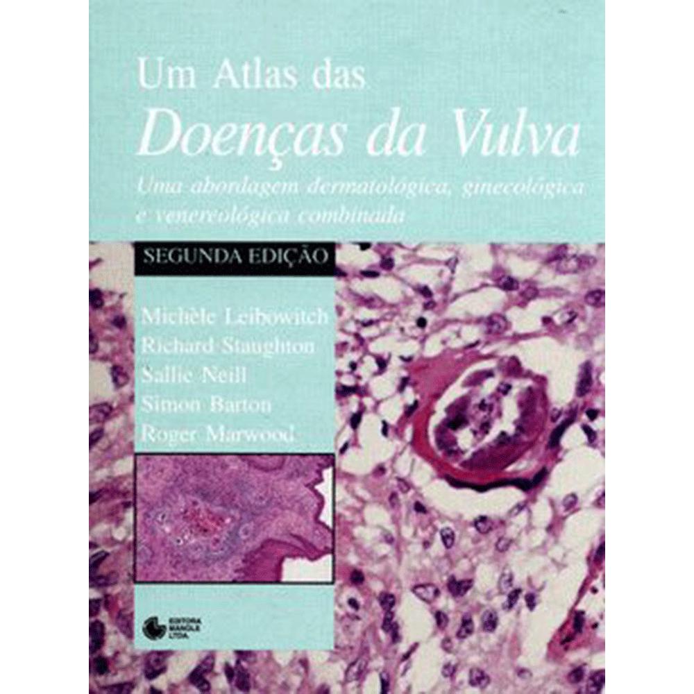 Atlas-de-Doencas-da-Vulva-2ed