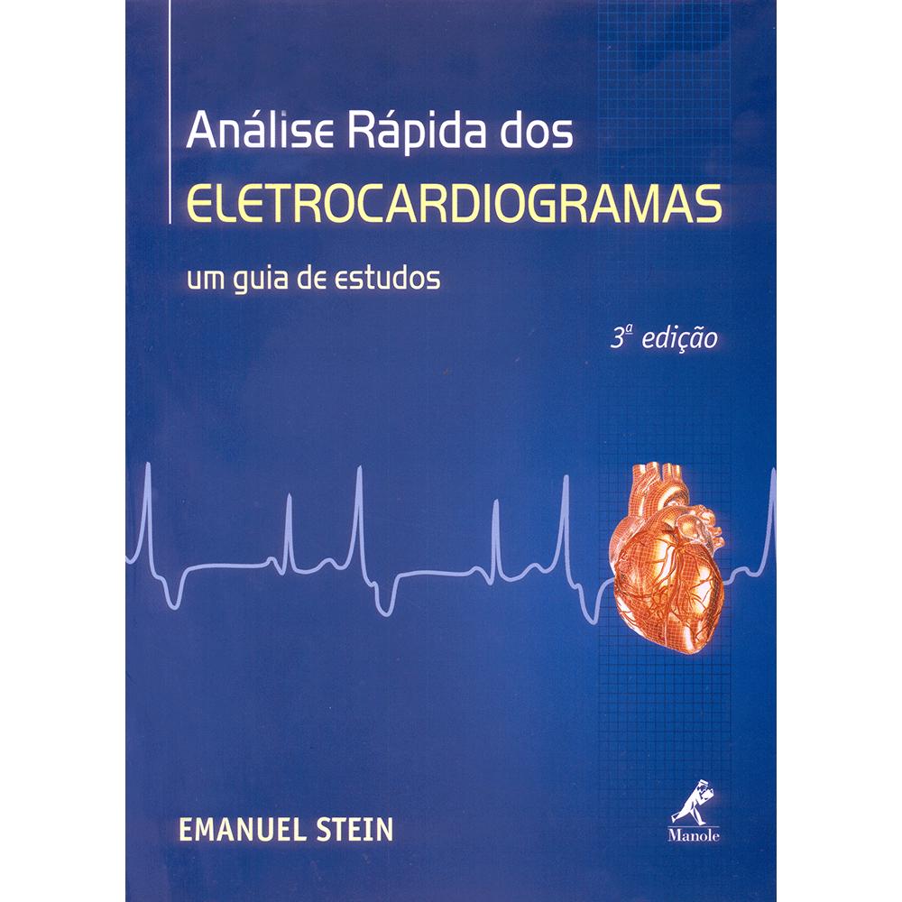 Analise-Rapida-dos-Eletrocardiogramas