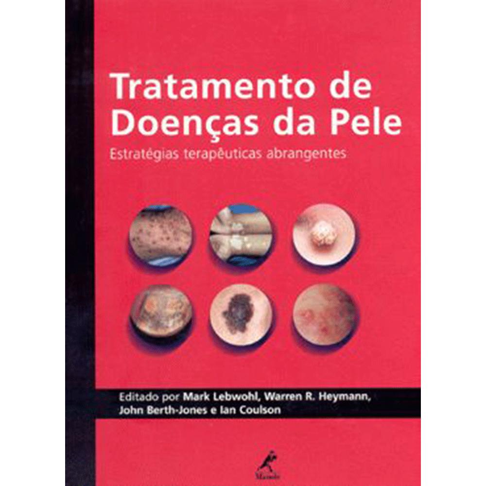 Tratamento-de-Doencas-da-Pele-Estrategias-Terapeuticas-Abrangentes