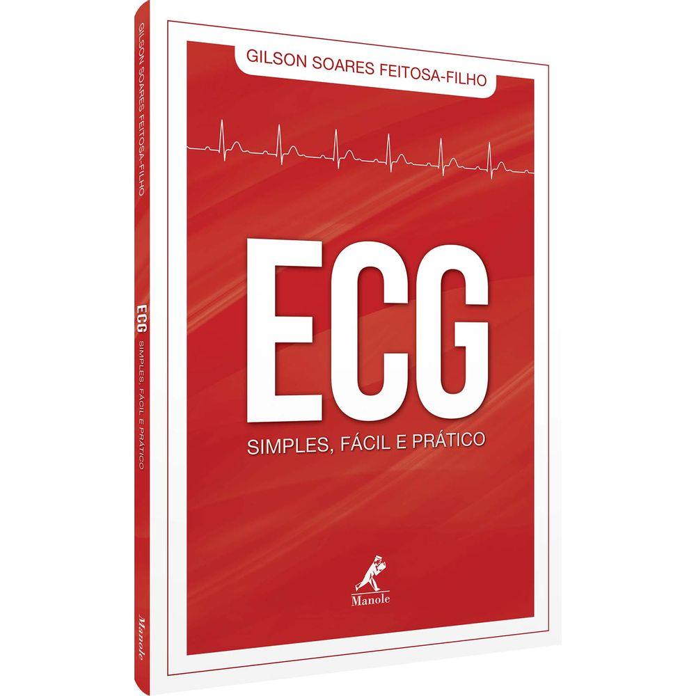 ecg-simples-facil-e-pratico